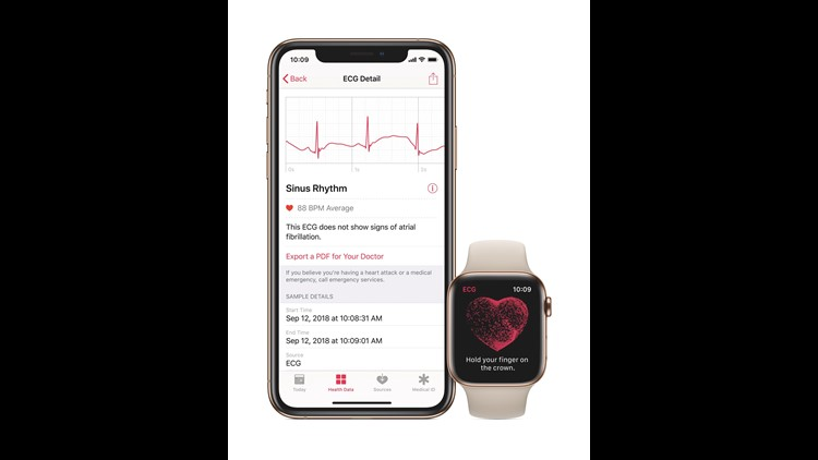 Watch Series4 Ecg Health Pr Print