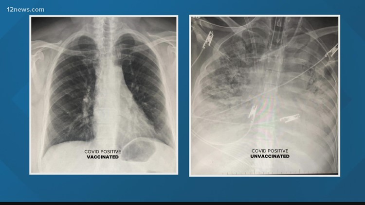 COVID-19 lung X-ray shows vaccine effectiveness, one Arizona doctor says
