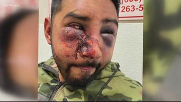 Stockton man says deputies beat him, used racial slurs at San Joaquin County Jail