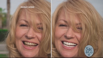 Interested in a Whiter, Brighter Smile?