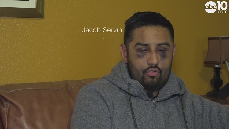 Stockton man talks allegedly being beaten by San Joaquin County Sheriffs