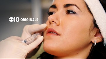 What you need to know about Botox parties | ABC10 Originals