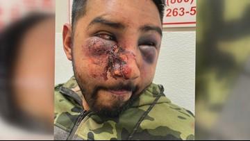Stockton man says he was beaten, called racial slurs by deputies at San Joaquin County Jail