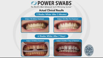 Brighten Up your Smile in Minutes!