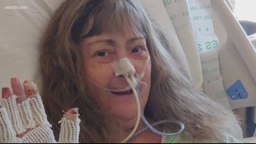 Camp Fire survivors still recovering from third-degree burns, concerned with future medical care
