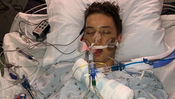 'It is not worth it' | Loomis mom offers warning about vaping after son hospitalized with lung illness