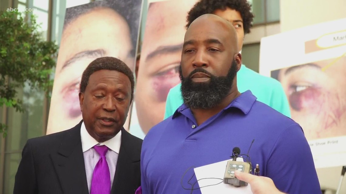 Family and attorney react to the indictment of Stockton Police officers in teen beating
