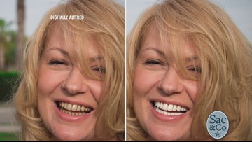 Get visibly whiter teeth in minutes!