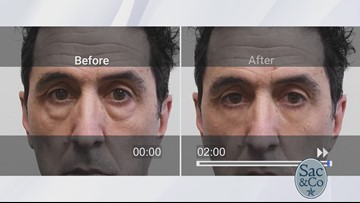 Feel insecure about under eye bags, dark circles or wrinkles? Plexaderm may be for you!