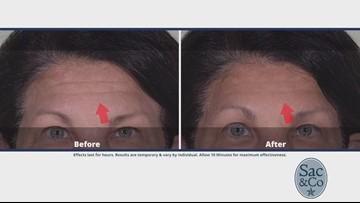 Want to Get Rid of Under Eye Bags, Dark Circles, or Wrinkles?