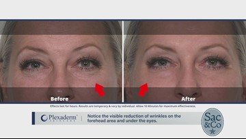Struggling from Under Eye Bags, Dark Circles, and Wrinkles from a View?